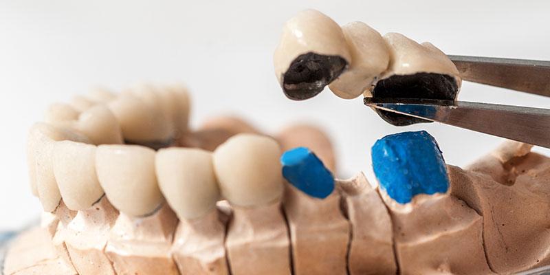 close-up-of-metal-ceramic-bridge-rehabilitation