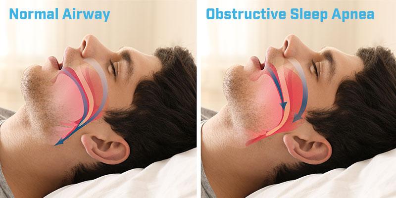 normal-airway-and-obstructive-sleep-apnea-illustration