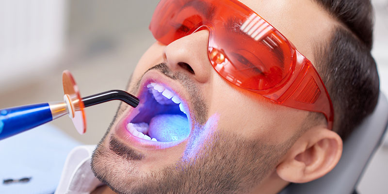 young-man-getting-teeth-whitening-at-dentist-cosmetic-dentistry